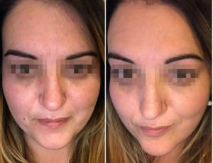 improvements 2 weeks after single chemical peel