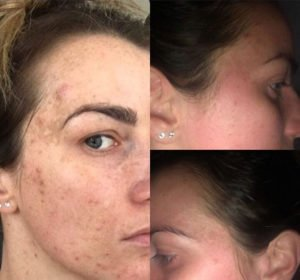 Acne and pigmentation improvements after 3 chemical peels