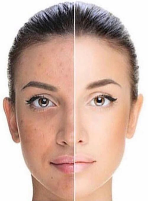 split view showing potential skin improvements from chemical peel