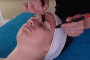 Client having microcurrent treatment during anti-ageing facial
