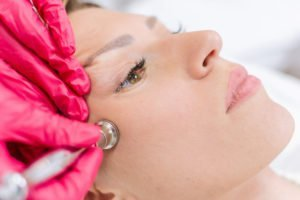 microdermabrasion with a diamond wand