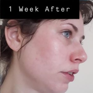Face one week after Microneedling