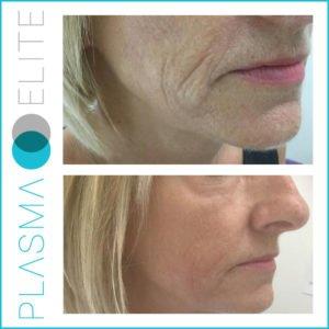plasma pen treatment on cheek lines