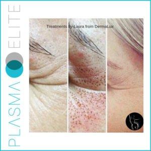 plasma pen eye skin tightening