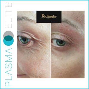 plasma pen treatment on loose eye skin