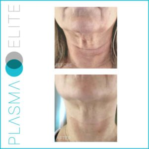plasma pen treatment on loose neck skin