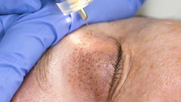 Plasma pen tightening eyelid wrinkles