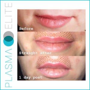 plasma pen treatment on upper lip