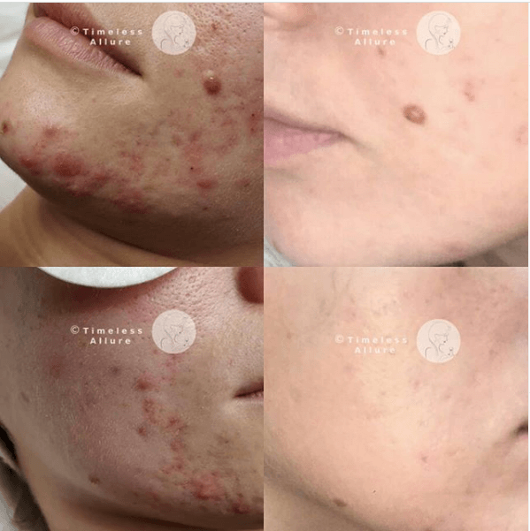 Fantastic Acne results