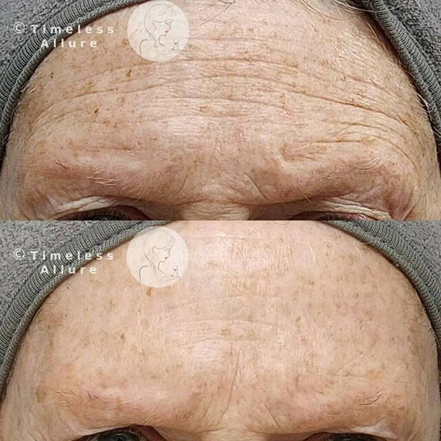 Great results for wrinkles and sun damage